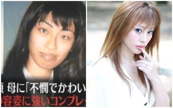 Hình ảnh trước (trái) và sau (phải) khi phẫu thuật của Tsubaki