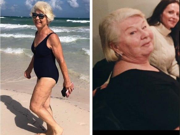 Sốc rớt hàm với cụ bà 73 tuổi tập gym giảm 20 kg trong sáu tháng ảnh 0